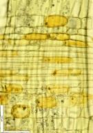 RUBIACEAE Mitragyna stipulosa