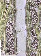 MALVACEAE HELICTEROIDEAE S. STR. Triplochiton scleroxylon