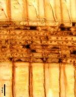 PINACEAE Pseudotsuga sinensis