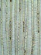 TAXACEAE Taxus baccata