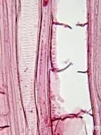 ERICACEAE Oxydendrum arboreum