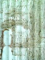 LEGUMINOSAE MIMOSOIDEAE Senegalia galpinii