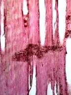 LEGUMINOSAE MIMOSOIDEAE Acacia sparsiflora