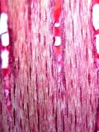LEGUMINOSAE MIMOSOIDEAE Archidendropsis basaltica