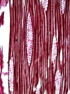 ARALIACEAE Schefflera decaphylla
