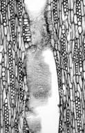 LEGUMINOSAE DETARIOIDEAE Crudia glaberrima
