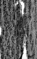 LEGUMINOSAE CAESALPINIOIDEAE Hardwickia binata