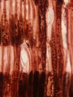 ERICACEAE Vaccinium leschenaultii