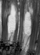 HAMAMELIDACEAE Trichocladus ellipticus malosanus