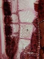 JUGLANDACEAE Oreomunnea pterocarpa