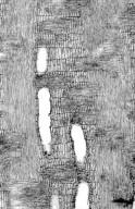 LEGUMINOSAE PAPILIONOIDEAE Derris robusta
