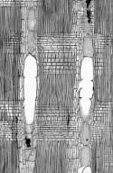 LEGUMINOSAE PAPILIONOIDEAE Ormosia formosana