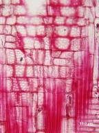 CORNACEAE Alangium uniloculare