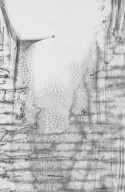 ANNONACEAE Xylopia papuana