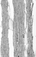 COMBRETACEAE Pteleopsis myrtifolia