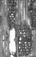 CALOPHYLLACEAE Mammea africana