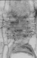 LEGUMINOSAE MIMOSOIDEAE Archidendropsis xanthoxylon