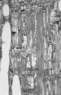 MYRTACEAE Corymbia papuana