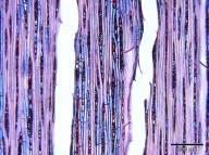 SAPOTACEAE Chrysophyllum africanum