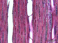 SAPOTACEAE Chrysophyllum lacourtianum