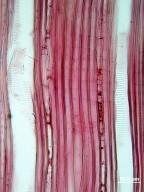 ADOXACEAE Viburnum cassinoides