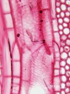 LEGUMINOSAE PAPILIONOIDEAE Robinia pseudoacacia