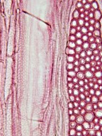 KOEBERLINIACEAE Koeberlinia spinosa