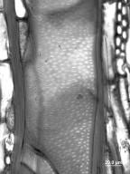 SAPOTACEAE Sideroxylon foetidissimum