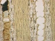 LEGUMINOSAE PAPILIONOIDEAE Mildbraediodendron excelsum