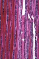 LEGUMINOSAE CAESALPINIOIDEAE Caesalpinia decapetala japonica