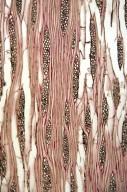 ADOXACEAE Sambucus sieboldiana