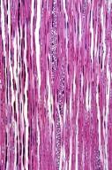 ERICACEAE Vaccinium ovalifolium
