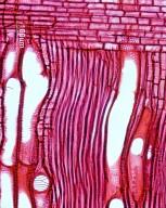 LAURACEAE Lindera erythrocarpa