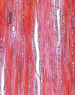 LAURACEAE Lindera glauca