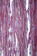 LAURACEAE Neolitsea sericea