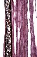 MENISPERMACEAE Stephania japonica