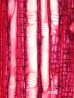 JUGLANDACEAE Rhoiptelea chiliantha