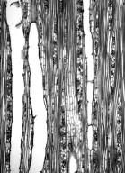 MALVACEAE GREWIOIDEAE Grewia tiliifolia