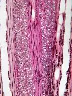 CASUARINACEAE Allocasuarina torulosa