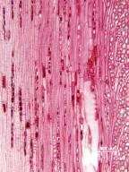 CASUARINACEAE Gymnostoma glaucescens