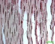 CASUARINACEAE Casuarina equisetifolia