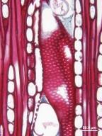 CALYCANTHACEAE Idiospermum australiense