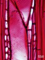 RUBIACEAE Pinckneya bracteata