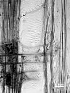 STYRACACEAE Pterostyrax hispidus