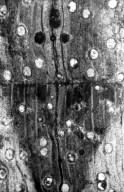 MIMOSOIDEAE Albizia vantagiensis