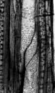 ARALIACEAE Plerandreoxylon oregonensis