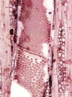 ANACARDIACEAE Antrocaryon klaineanum