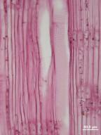 AQUIFOLIACEAE Ilex verticillata