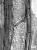 ANACARDIACEAE Loxostylis alata
