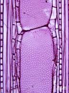 MELASTOMATACEAE Conostegia rufescens